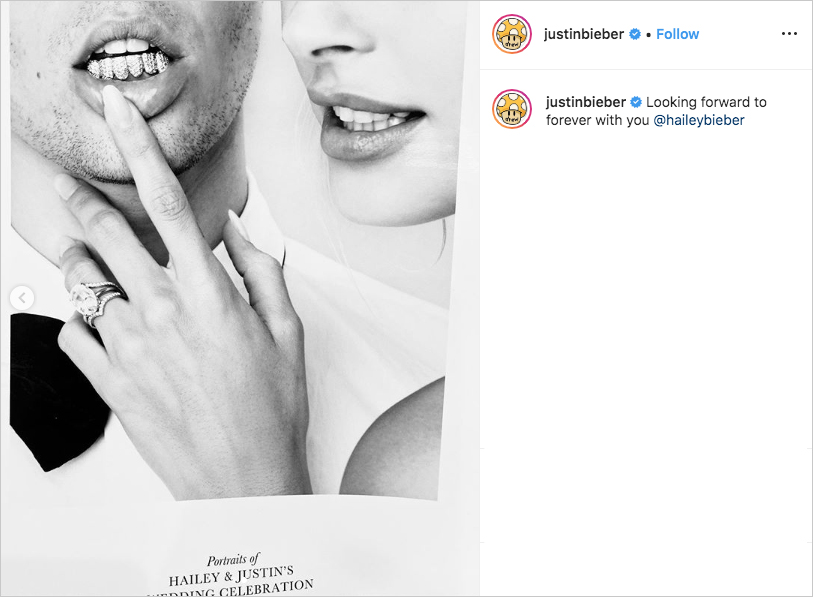 Justin Bieber and Hailey Baldwin wedding black and white photo portrait jewels on teeth grill